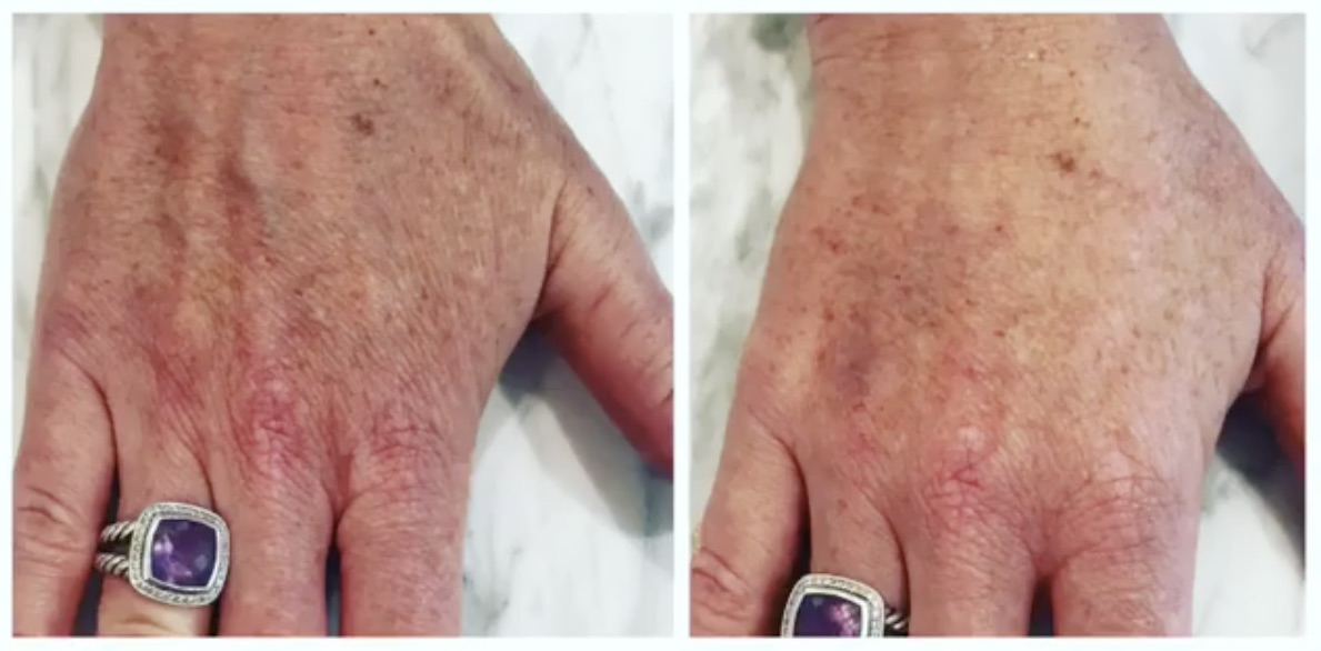 hand rejuvenation at the look before and after
