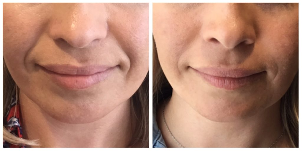 3 Ways Dermal Fillers Can Make You Look Instantly Younger