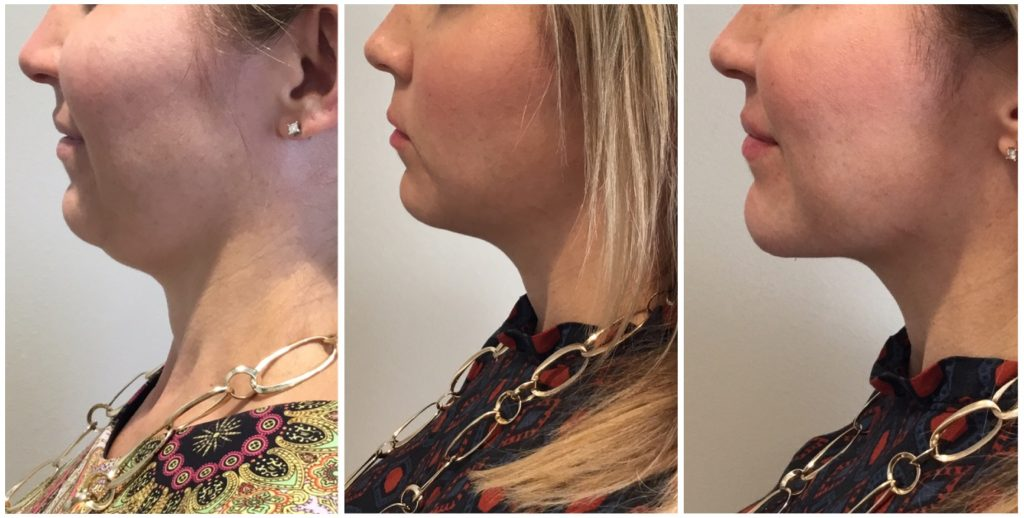 Say Goodbye to a Double Chin with Kybella - The Look Facial