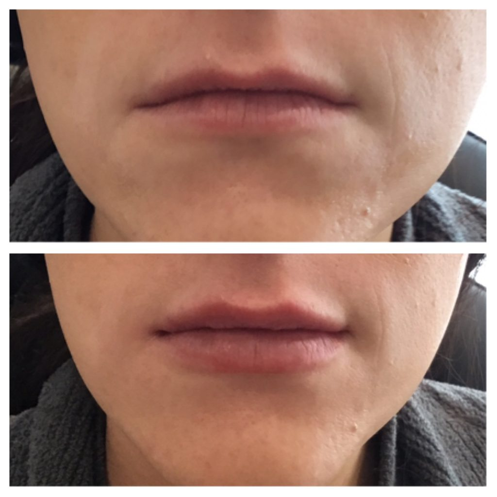 lips with dermal fillers